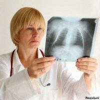 Прокуратура Тувы подала в суд на больных туберкулезом, уклоняющихся от лечения