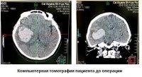 Нейрохирурги Тувы впервые малоинвазивной операцией растворили инсультную внутримозговую гематому
