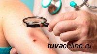 Тува: Республиканский онкологический диспансер объявил акцию «ОНКОдозор: проверь родинку!»