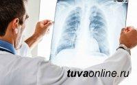 В ведущей клинике Тувы у большинства курящих мужчин старше 40 лет выявили патологии